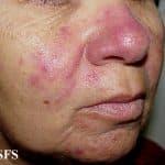 Source http://www.atlasdermatologico.com.br/disease.jsf?diseaseId=6