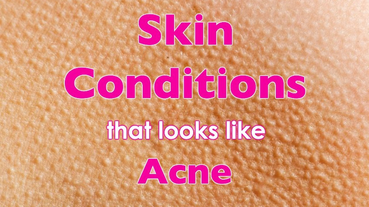 Skin Conditions That Look Like Acne - But Aren't