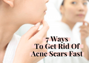how to get rid of redness skincare blog